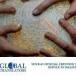 Call Global1Stop Translators for translations